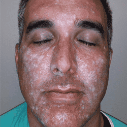 Post-chemical-peel-of-Lombard-plastic-surgeon