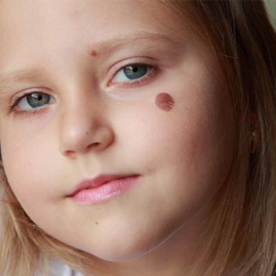 birth mark on the face