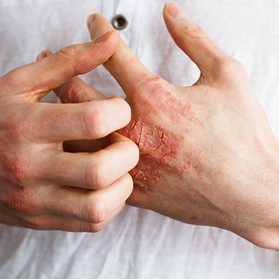 eczema on the hands