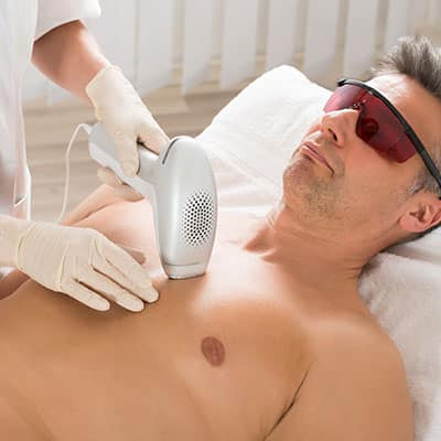 hair removal on the chest