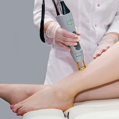 laser hair removal on the leg