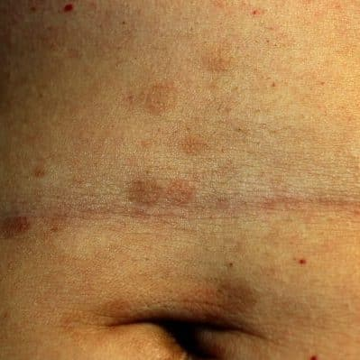 lichen planus on the skin