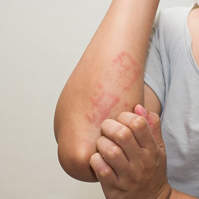 rash on the body