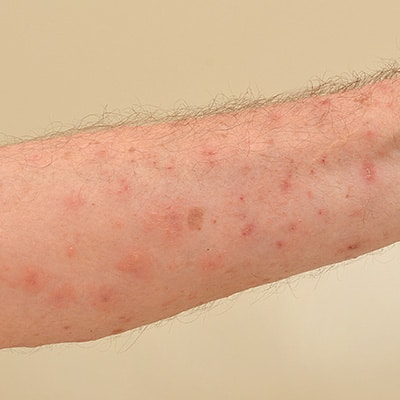 scabies on the skin