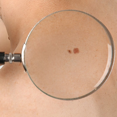 skin cancer under a magnifying glass