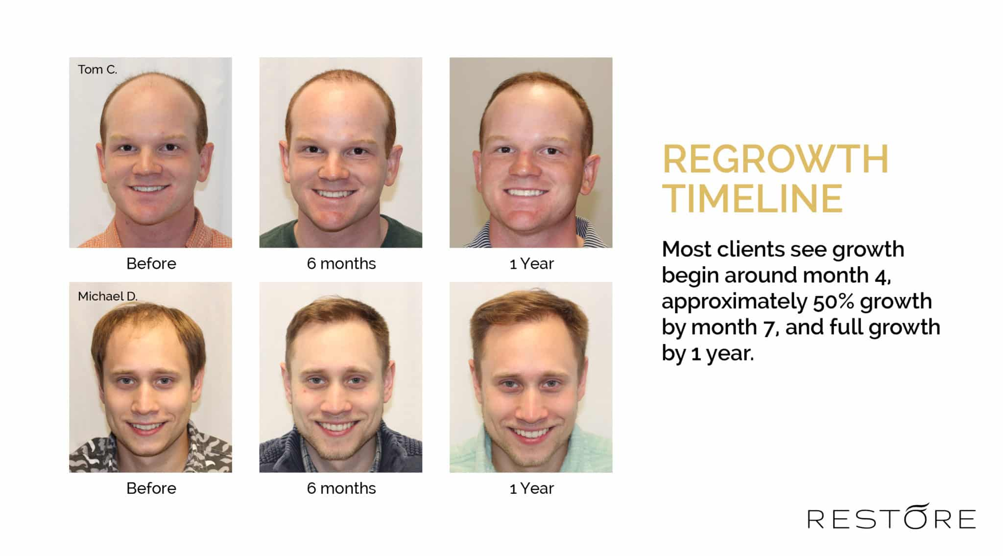 Regrowth Timeline - Most clients see growth begin around month 4, approximately 50% growth by month 7, and full growth by 1 year.