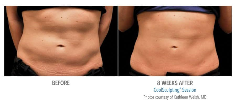 Coolsculpting - before and 8 Weeks After