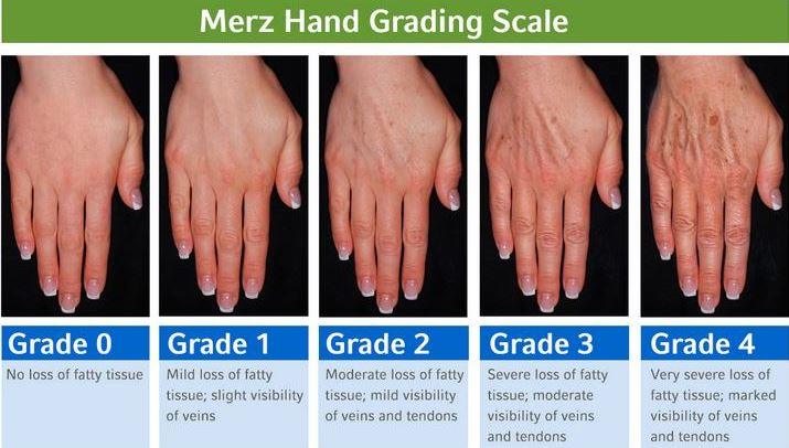 Merz Hand Grading Scale