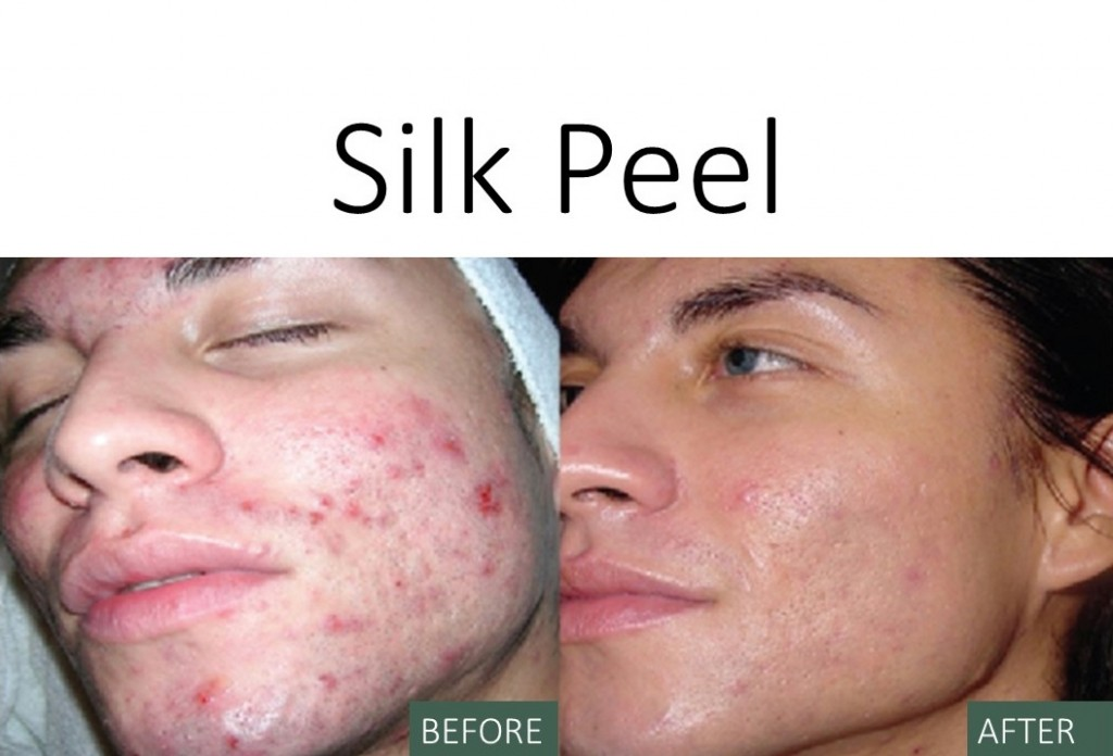 Silk Peel