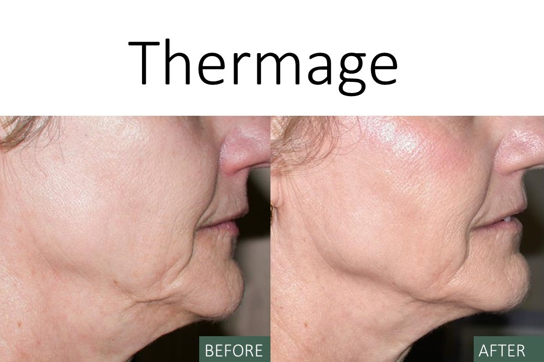 Thermage - Before and After