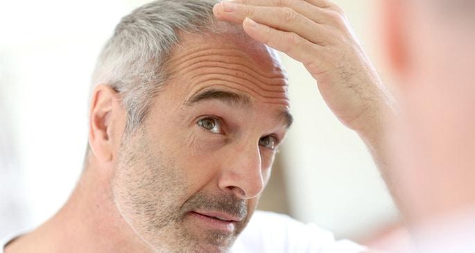 Man checking his hairloss