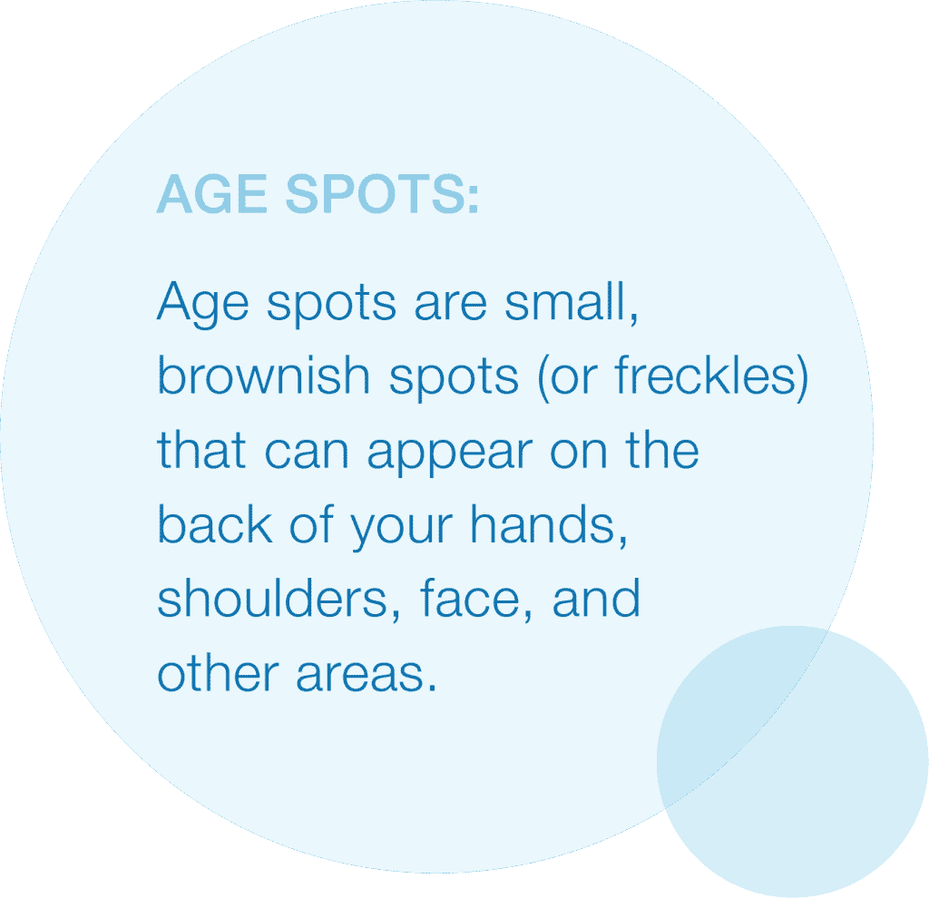 Graphic listing definition of age spots